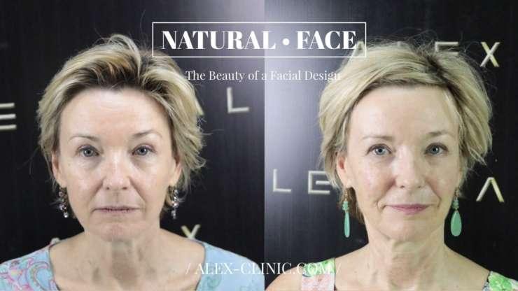The Facial Design
